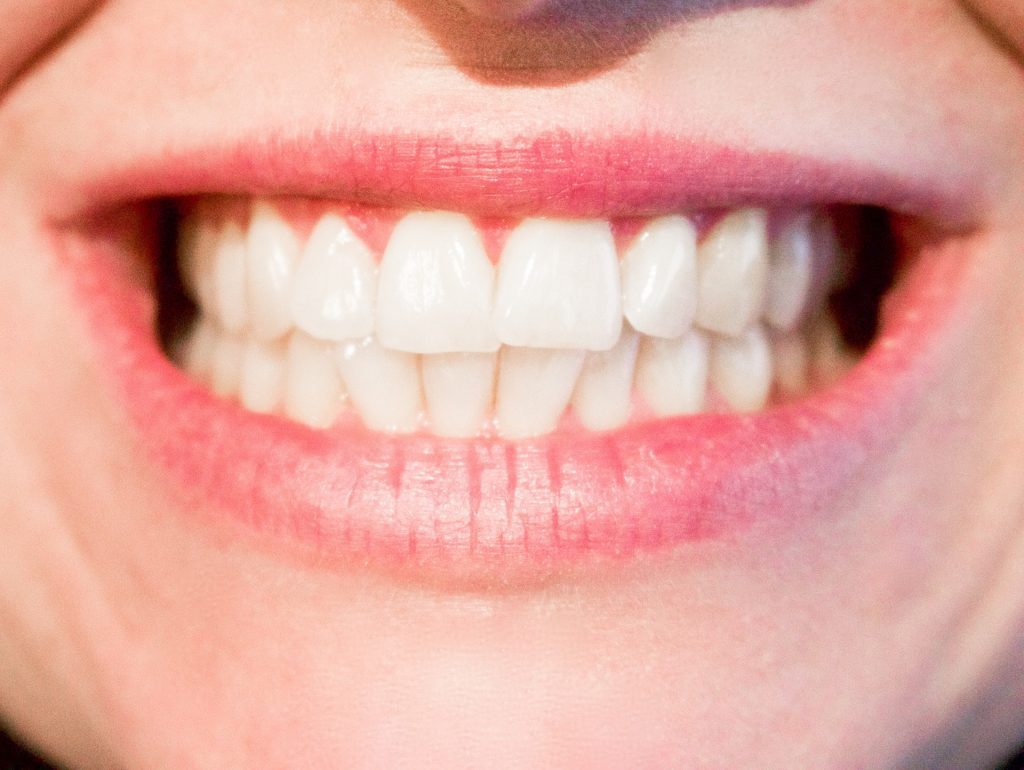 ENSURING THAT TEETH WHITENING IS SAFE