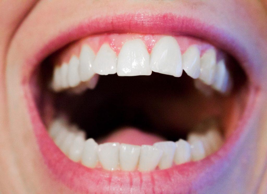 The Perils of Having Crooked Teeth-min