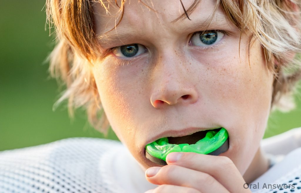 How Mouthguards Can Protect you from Dental Injuries-min