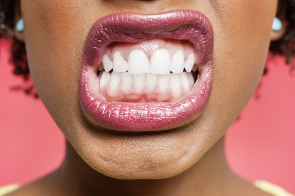 Things to Discover About Teeth Grinding-min