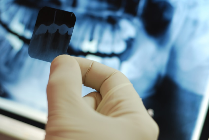 The Significance of Dental XRays in Dentistry-min