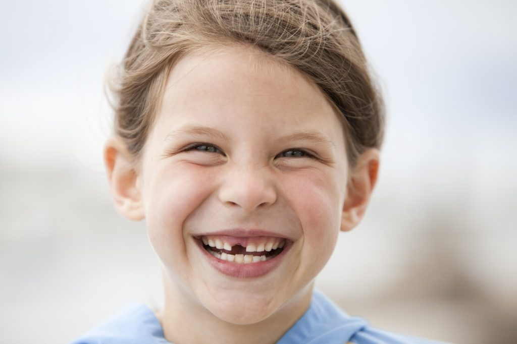 Dental Sealants protecting your childs teeth-min
