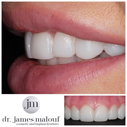 composite-veneers-brisbane-before-and-after-kayla-2