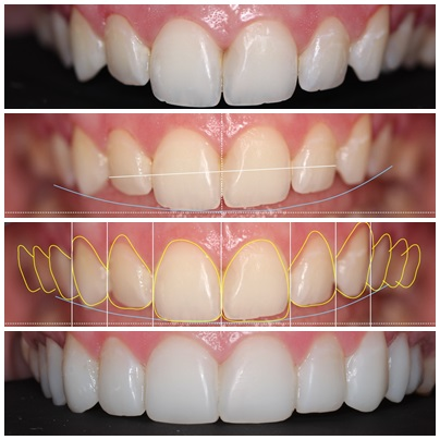 composite-veneers-brisbane-before-and-after-kayla-1