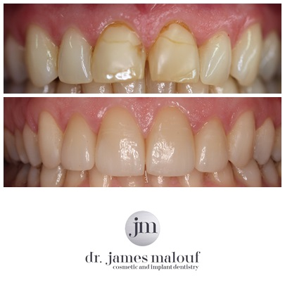 porcelain-veneers-before-and-after-yvonne