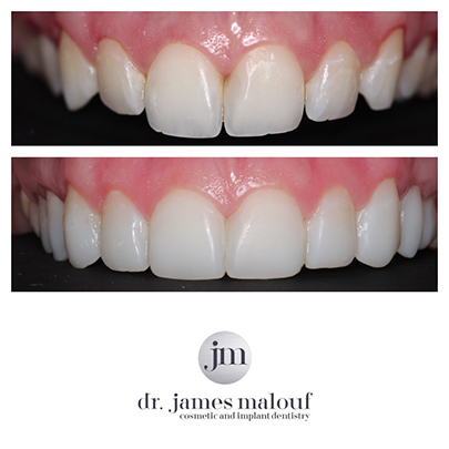 composite-veneers-brisbane-before-and-after-kayla-5