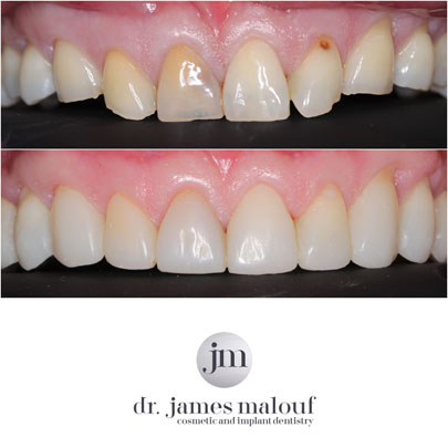 composite-veneers-brisbane-before-and-after-richard-1new