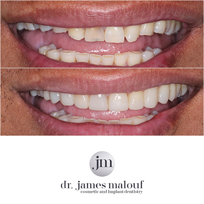 composite-veneers-brisbane-before-and-after-richard-2-1
