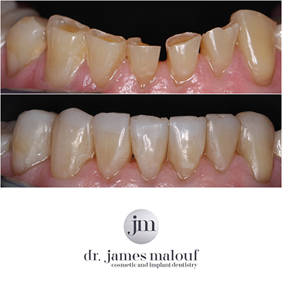 composite-veneers-lower-before-and-after-brisbane