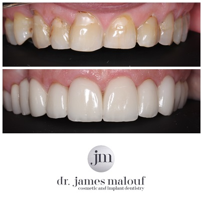 porcelain-crowns-_-veneers-brisbane-before-and-after-clayton