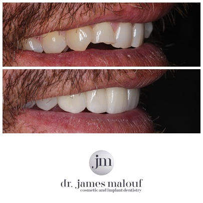 porcelain-veneers-brisbane-before-and-after-jason