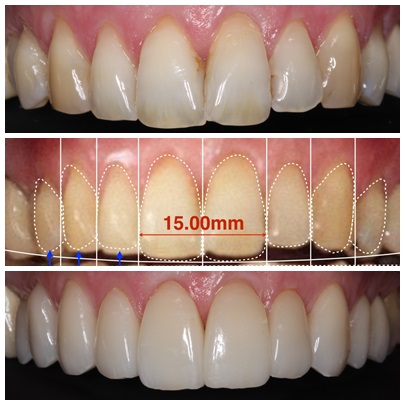 porcelain-veneers-brisbane-before-and-after-leonie-1