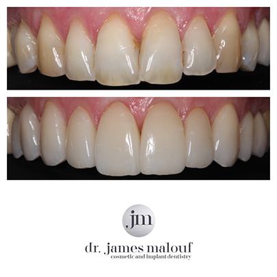 porcelain-veneers-brisbane-before-and-after-leonie-2