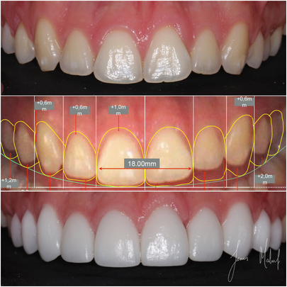 Porcelain Veneers Case Study - ARki -img7