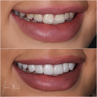 Steps to Dental Veneers