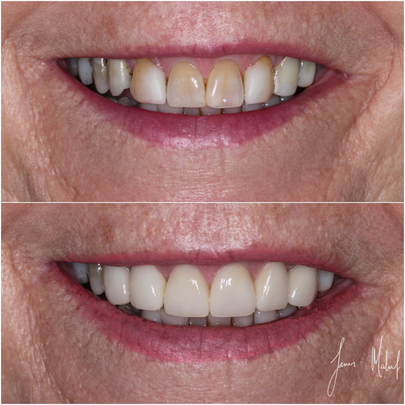 Porcelain Veneers Case Study - Gill - Image5