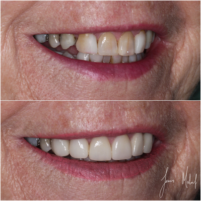Porcelain Veneers Case Study - Gill - Image4