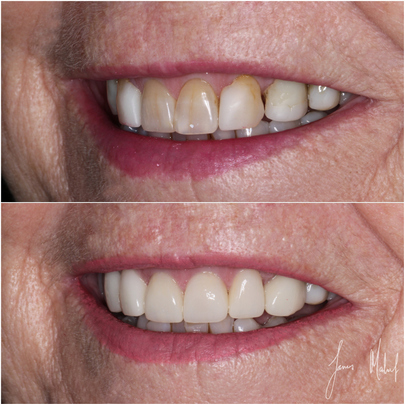 Porcelain Veneers Case Study - Gill - Image3