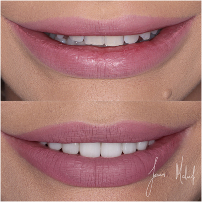 Porcelain Veneers Case Study - Kate -img1