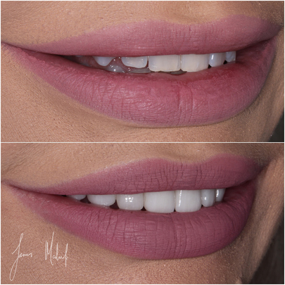 Porcelain Veneers Case Study - Kate -img2