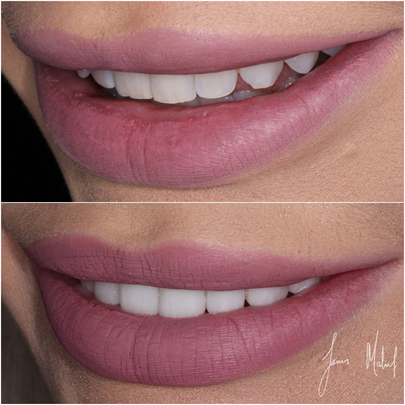 Porcelain Veneers Case Study - Kate -img3