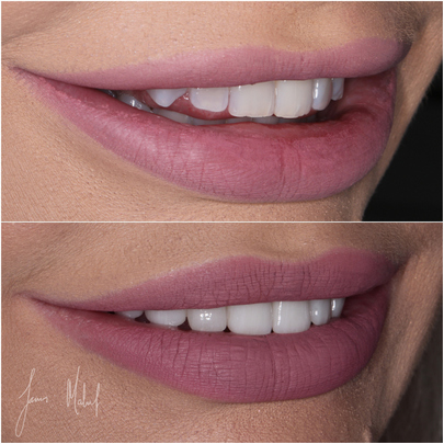 Porcelain Veneers Case Study - Kate -img4